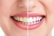 بالفيديو : اسهل طريقة لتبييض الاسنان في المنزل