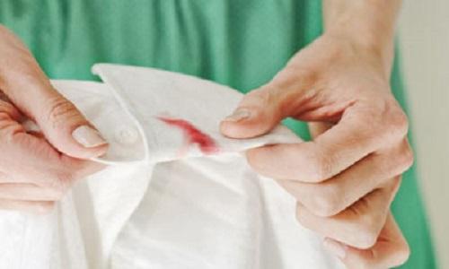أسهل طريقة لـ ازالة بقع الدم عن الملابس