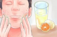 ما هي طريقة علاج حب الشباب في الوجه بسرعه