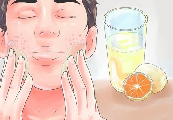 علاج حب الشباب في الوجه بسرعه