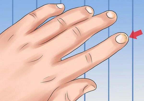 علاج صدفية الأظافر