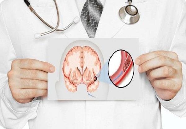 اعراض السكتة الدماغية الصامتة