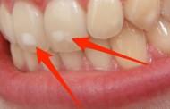طريقة الوقاية من بقع الاسنان البيضاء و الصفراء والسوداء