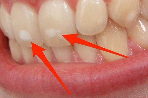 بقع الاسنان البيضاء