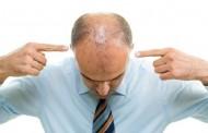 ماهو علاج الشعر الخفيف من الامام ؟