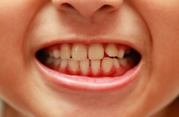 ما هي افضل اطعمة لتقوية الاسنان ؟