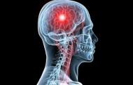 السكتة الدماغية اسبابها وعلاجها
