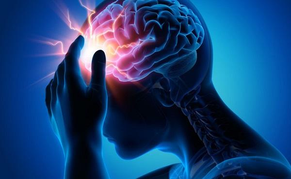 السكتة الدماغية الإقفارية