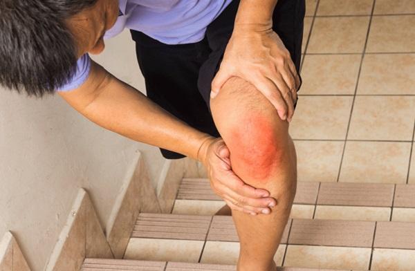 تجربتي مع علاج خشونة الركبة