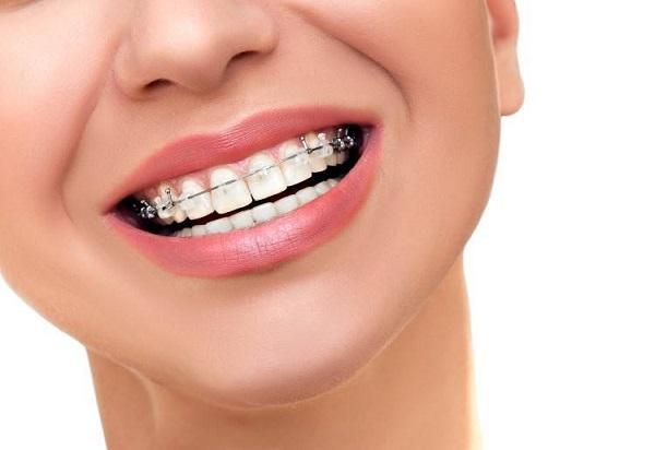 تجربتي مع جسر الأسنان طريقة