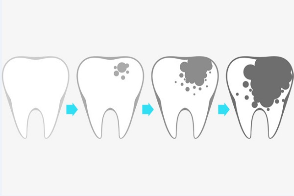 تجربتي مع تسوس الأسنان