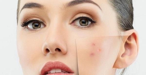تجربتي مع علاج حفر الوجه
