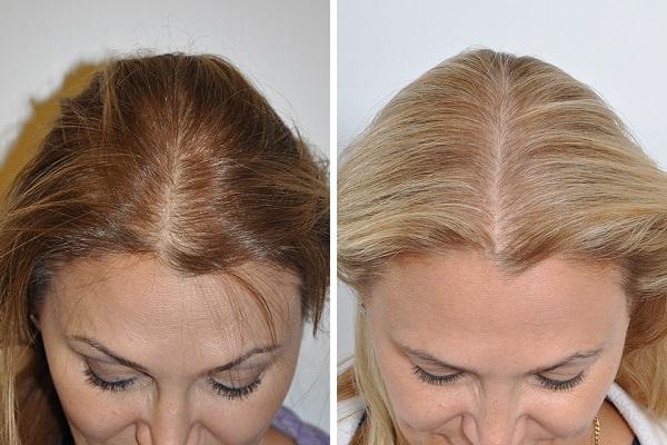 تجربتي مع زراعة الشعر للنساء