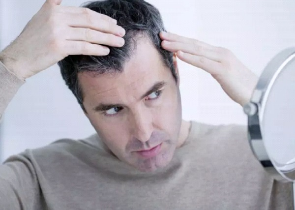 علاج تساقط الشعر عند الرجال من الامام