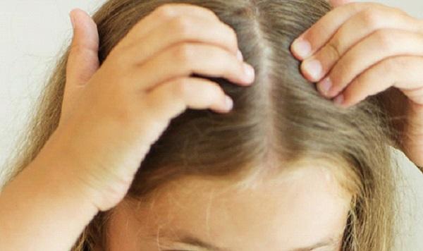 علاج تساقط الشعر عند الاطفال بالاعشاب